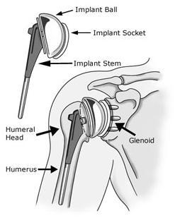 shoulderreplacement