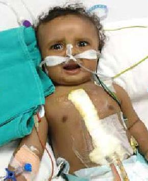 Amgad Madgi - HBG medical assistance facilitates successful cardiac surgery