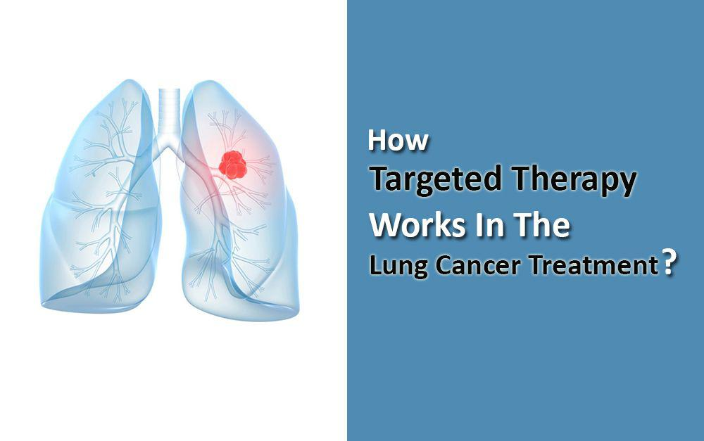 Targeted Therapy For Lung Cancer
