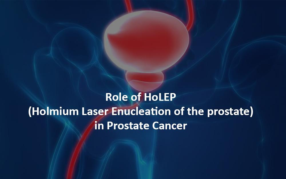 Role of HoLEP (Holmium Laser Enucleation of the prostate) in Prostate Cancer
