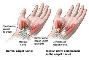 Carpal tunnel decompression