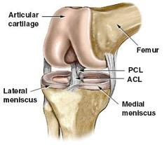 ACL reconstruction 2