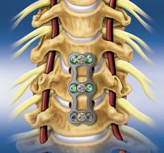 Anterior Cervical Corpectomy and Fusion