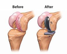 Cartilage Repair or Restoration