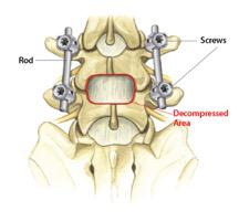 Decompression and Spine Fusion