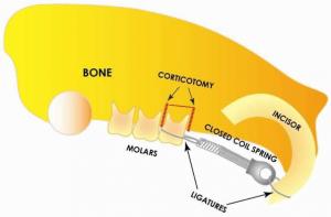 Dental Corticotomy