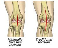Minimally Invasive Knee Replacement
