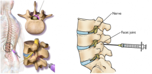 Steroid Injections for Spine Treatment