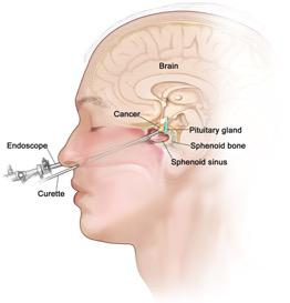 TNTS (Trans Nasal Trans Sphenoidal) Endoscopic Surgery