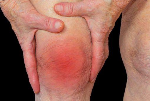 About Rheumatoid Arthritis