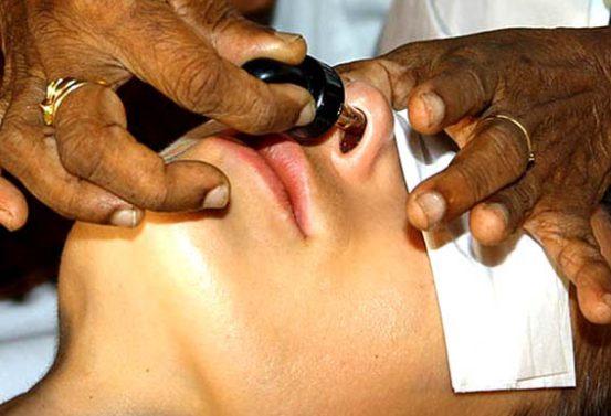 Nasal Administration
