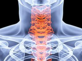 Laminectomy Spine Surgery