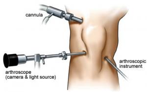 Arthroscopy in Knee Injuries