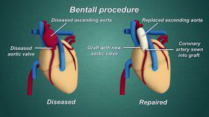 Bentall Procedure
