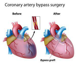 CABG (Coronary Artery By-pass Grafting Surgery or By-pass Surgery)