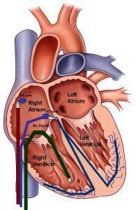 EPS (Electro Physiology Study)