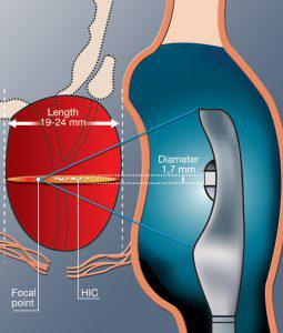 High Intensity Ultrasound Treatment for Prostate Cancer in India (HIFU)