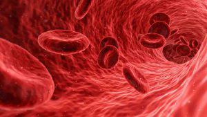 Immunotherapy for treatment of Eosinophilic leukemia