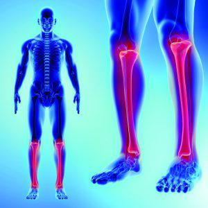 Limb Deformity Correction
