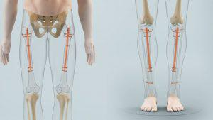 Limb Lengthening