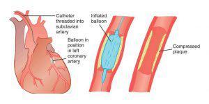 PTCA (Angioplasty)
