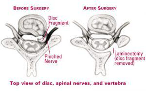 Posterior Cervical Laminectomy