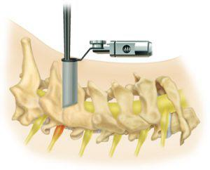 Posterior Microdiscectomy for Cervical Spine