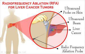 RFA (Radio Frequency Ablation)