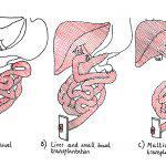 Intestinal Transplantation