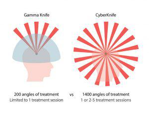 Cyber Knife and Gamma Knife