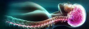 Neuromyelitis Optic