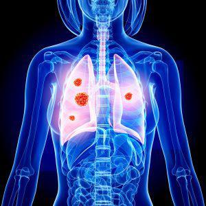 Pneumonectomy